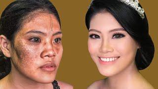 Trang Điểm Cô Dâu Da Nám Chàm  Đẹp Không Tì Vết / Hùng Việt Makeup