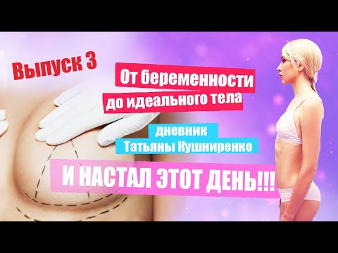 От беременности до идеального тела. Операции по увеличению груди быть! Дневник Татьяны Кушниренко photo
