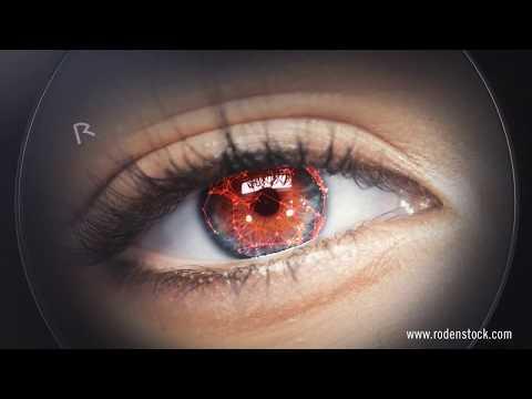Der Fingerabdruck Ihrer Augen – gemessen mit DNEye®