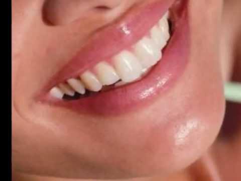 Quickwhite Carbamide teeth whitening bleaching