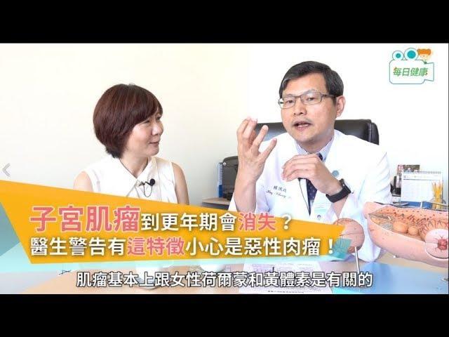子宮肌瘤到更年期會自動消失? 醫生點出有這特徵小心是惡性肉瘤