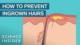 What Are Ingrown Hairs —And How To Treat Them