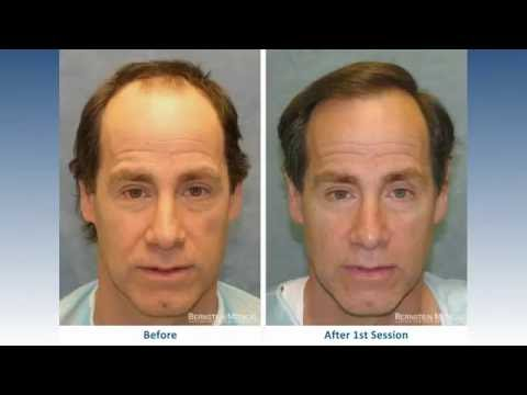 Hair Transplant Before and After: Bernstein Medical Patient AKL