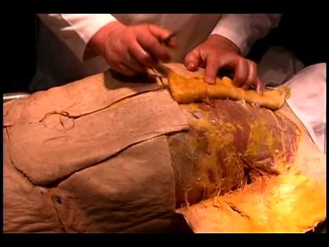 Dissection 1: Skin and Subcutaneous Tissue or Trunk and ...