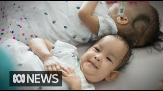 Formerly conjoined twins 'bum shuffle' back together after surgery | ABC News