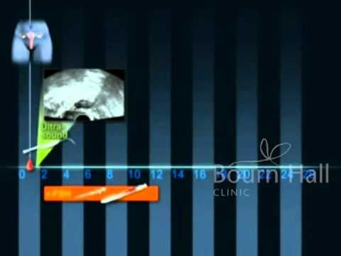 Prot Estimulacion Inseminacion - Bournhall Clinic