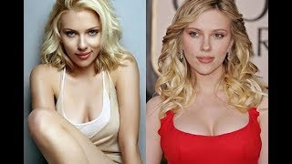 Celebrities Plastic Surgery transformations 2015 - 40 Stars Before After Plastic Surgery