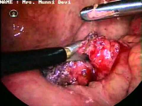 Burst Appendix - YouTube