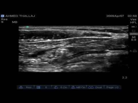 Nerve Block: Ilioinguinal Nerve Block Youtube