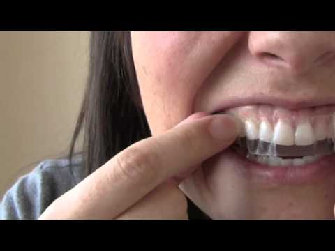 How to get Whiter teeth in 2 hours! | Kandee Johnson