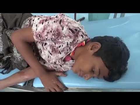 إصابة طفل برصاص مليشيا الحوثي في الجبلية