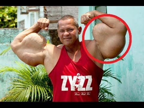 Arlindo de Souza the Brazilian Hulk with 29 inch Biceps