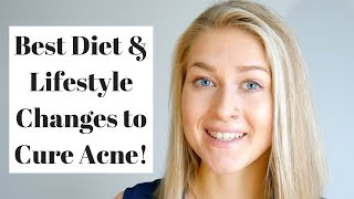 No ACNE Skin. Food to Eat. Lifestyle Changes.