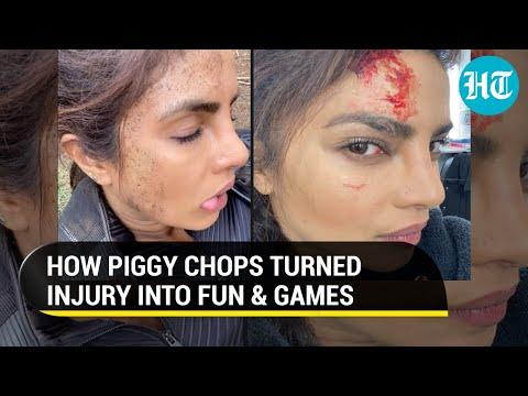 Priyanka Chopra injured on sets of Citadel, wants you to identify fake and real wound