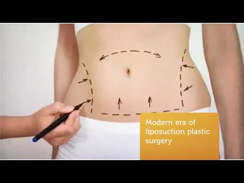 Best Liposuction Cost in Los Angeles, CA | 310 271 5875