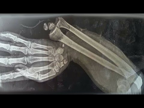 A Boy Ate 150 Gummy Vitamins For Breakfast. This Is What Happened To His Bones.
