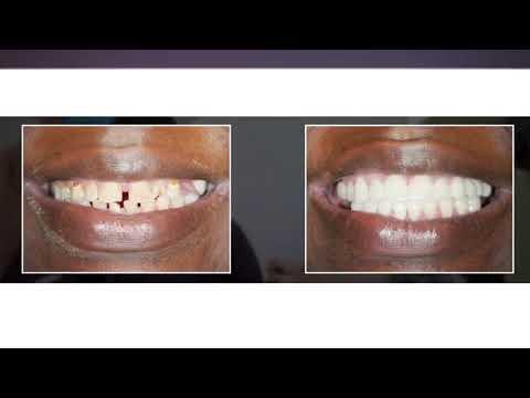 Fort Lauderdale Dentist | Dr. Robert | Stanton Smiles