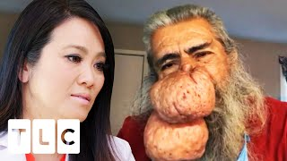 """""""By Far the Most Extensive Case of Rhinophyma That I've Seen"""" 