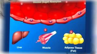 ما سبب حدوث مرض السكر