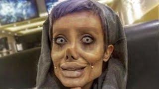 Teen Has 50 Surgeries To Look Like Angelina Jolie Gone Wrong - Sahar Tabar
