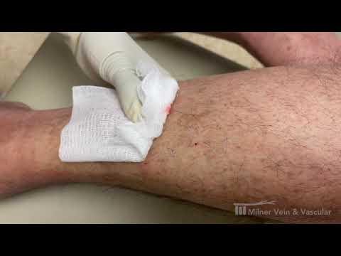 Treatment of Varicose Veins, Legs, Spider Veins Exercise | Phone +1 678 580 1149
