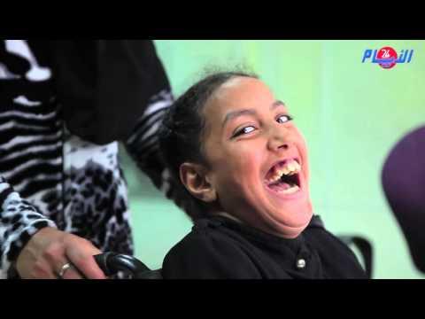 الطفلة أمل تعاني من إعاقة و سرطان الدم تناشد القلوب الرحيمة من أجل مساعدتها