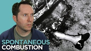 Spontaneous Human Combustion - Could You Burst Into Flames? | Random Thursday