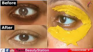 ஒரே இரவில் கருவளையங்களைப் போக்க| Remove Dark circle in tamil | Tamil Beauty Tips