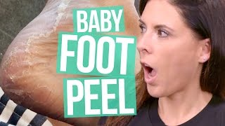 INSANE Baby Foot Peel (Beauty Break)