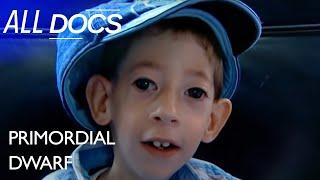 Primordial Dwarf: The World's Tiniest Boy   Extraordinary People Documentary   Documental