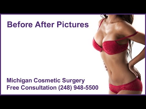 Plastic Surgery Video
