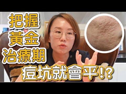 臉上的痘疤要怎麼治療才可以消失?今天跟你說早期痘疤治療的重要性!