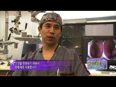 오늘 아침 '주부생활 백서' - 베이킹 소다의 숨은 비밀!, #04 20130930