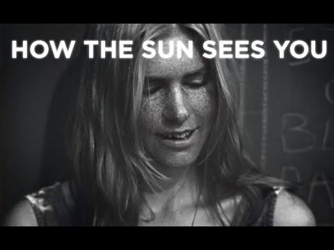 Uticaj sunca na kožu