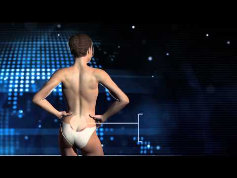 What is back pain and how does it affect you.mov