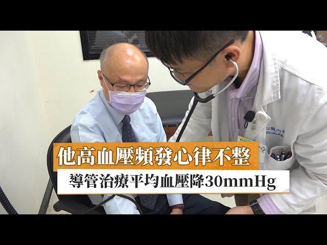他高血壓頻發心律不整 導管治療平均血壓降30mmHg