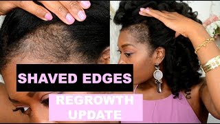 Shaved Off Edges To Grow Them Back Thicker + Derma Roller: Week 11 Update | Traction Alopecia | #8