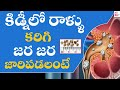 What is the best treatment for kidney stones? | Dr Sampath kumar