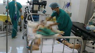 Bệnh viện Chợ Rẫy Chăm sóc đặc biệt 2 nạn nhân bị phóng điện