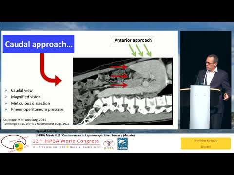 SS02.2 IHPBA Meets ILLS: Controversies in Laparoscopic Liver Surgery