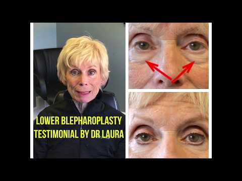 Lower Blepharoplasty Results