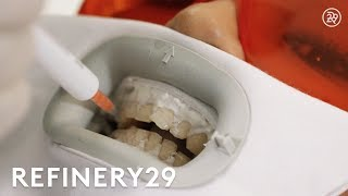 I Got Zoom Teeth Whitening For The First Time | Macro Beauty | Refinery29