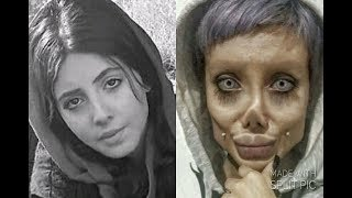 Sahar Tabar - My Before And After 50 Surgeries Transformation to look like Angelina Jolie - Zombie
