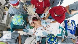 Conjoined twins survive 26-hour separation surgery | Mashable