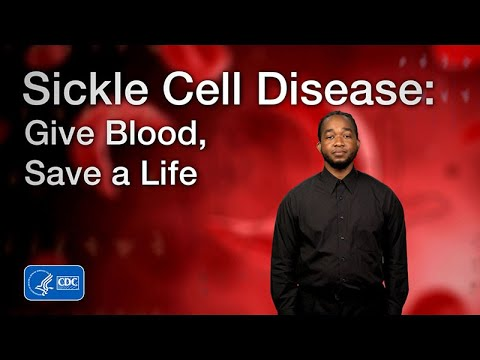Sickle Cell Disease: Give Blood, Save a Life (American Sign Language)