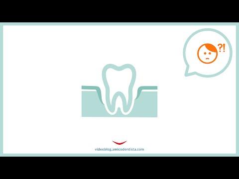 La piorrea è nemica degli impianti dentali?