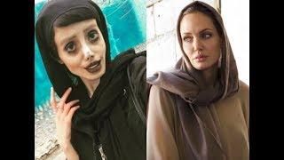 Iranian Model Underwent-To Look Like Angelina Joli