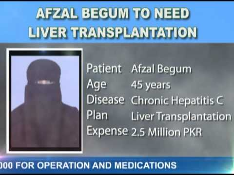 Afzal Begum to need liver Transplantation