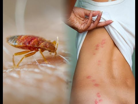 How to get rid of bed bugs yourself at home!