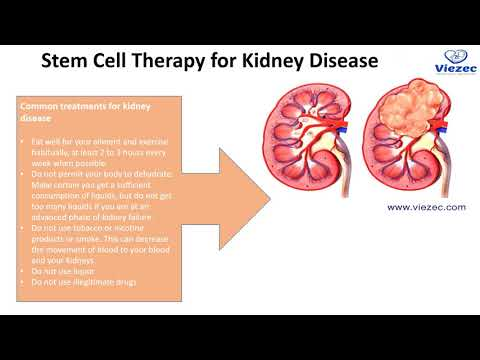 Most Popular Stem Cell Therapy - Viezec